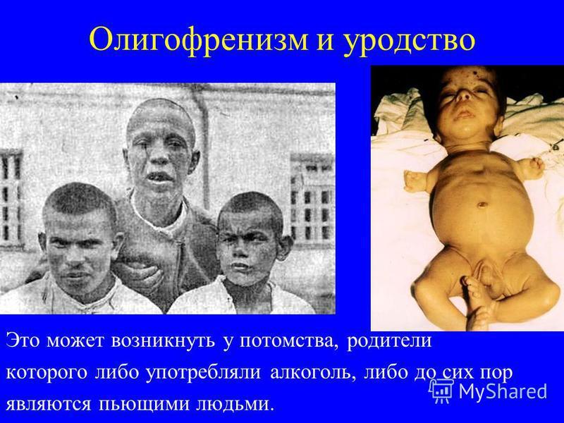 Олигофренизм и уродство Это может возникнуть у потомства, родители которого либо употребляли алкоголь, либо до сих пор являются пьющими людьми.