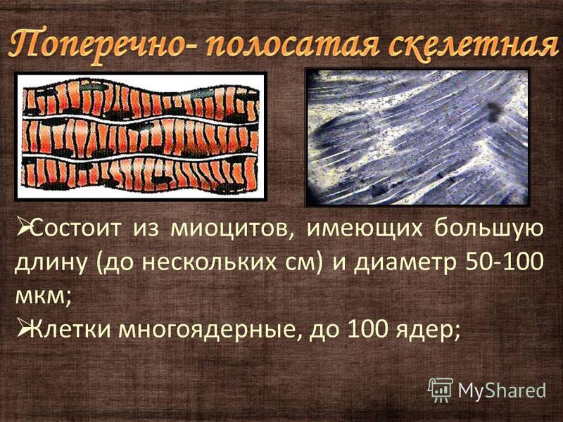 Состоит из миоцитов, имеющих большую длину (до нескольких см) и диаметр 50-100 мкм; Клетки многоядерные, до 100 ядер;