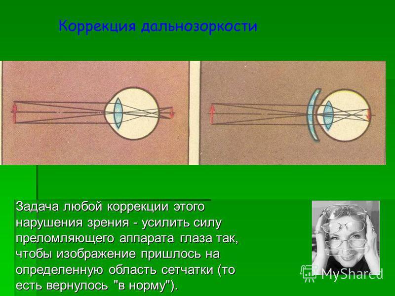 Задача любой коррекции этого нарушения зрения - усилить силу преломляющего аппарата глаза так, чтобы изображение пришлось на определенную область сетчатки (то есть вернулось в норму). Коррекция дальнозоркости