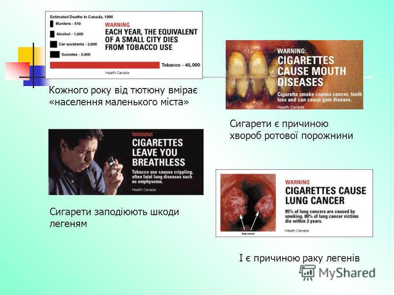 Кожного року від тютюну вмірає «населення маленького міста» Сигарети є причиною хвороб ротової порожнини Сигарети заподіюють шкоди легеням І є причиною раку легенів