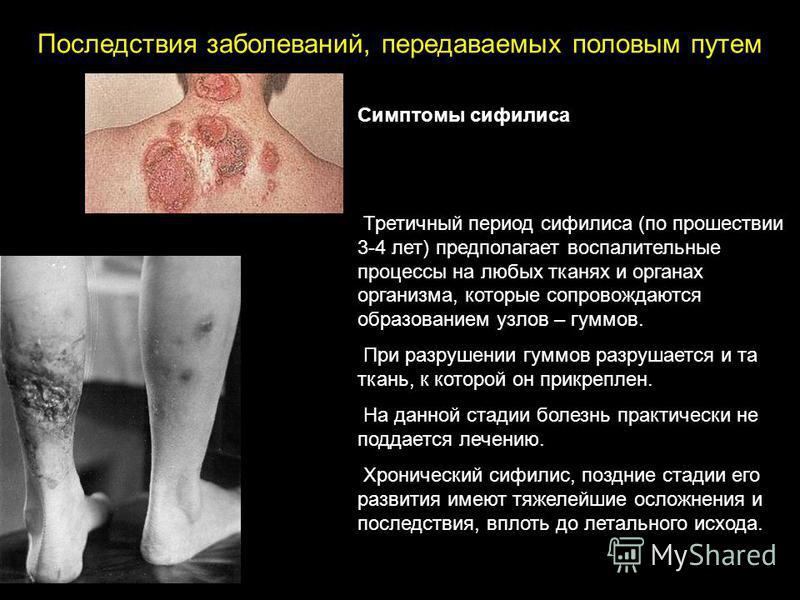 Симптомы сифилиса Третичный период сифилиса (по прошествии 3-4 лет) предполагает воспалительные процессы на любых тканях и органах организма, которые сопровождаются образованием узлов – гумов. При разрушении гумов разрушается и та ткань, к которой он