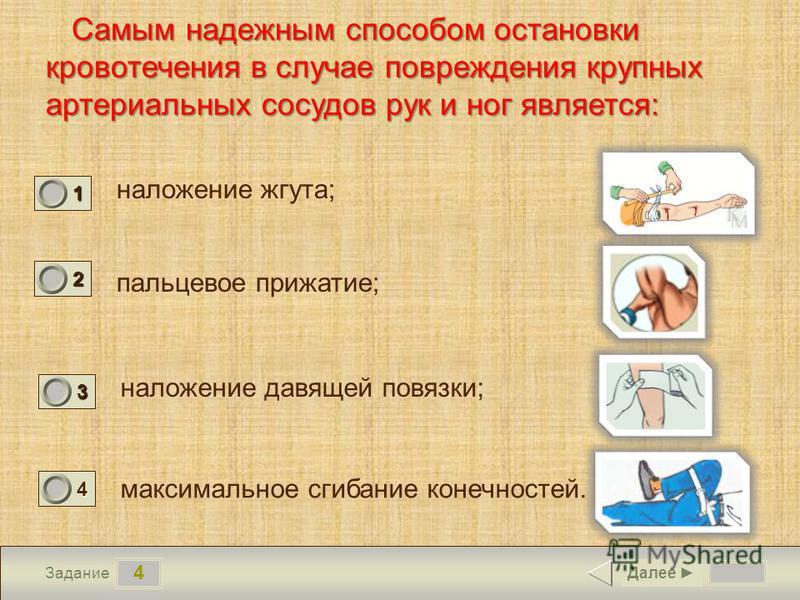 4 Задание Самым надежным способом остановки кровотечения в случае повреждения крупных артериальных сосудов рук и ног является: наложение жгута; пальцевое прижатие; наложение давящей повязки; максимальное сгибание конечностей. Далее 1 1 2 0 3 0 4 0