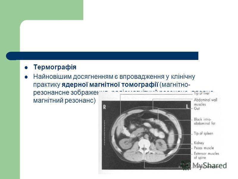Термографія Найновішим досягненням є впровадження у клінічну практику ядерної магнітної томографії (магнітно- резонансне зображення, радіомагнітний резонанс, ядерно- магнітний резонанс)