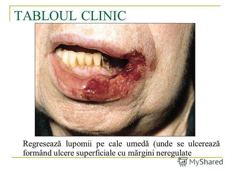 TABLOUL CLINIC Regresează lupomii pe cale umedă (unde se ulcerează formând ulcere superficiale cu mărgini neregulate