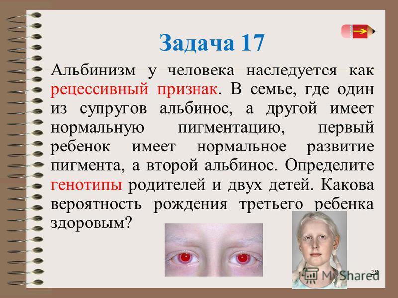 28 Задача 17 Альбинизм у человека наследуется как рецессивный признак. В семье, где один из супругов альбинос, а другой имеет нормальную пигментацию, первый ребенок имеет нормальное развитие пигмента, а второй альбинос. Определите генотипы родителей