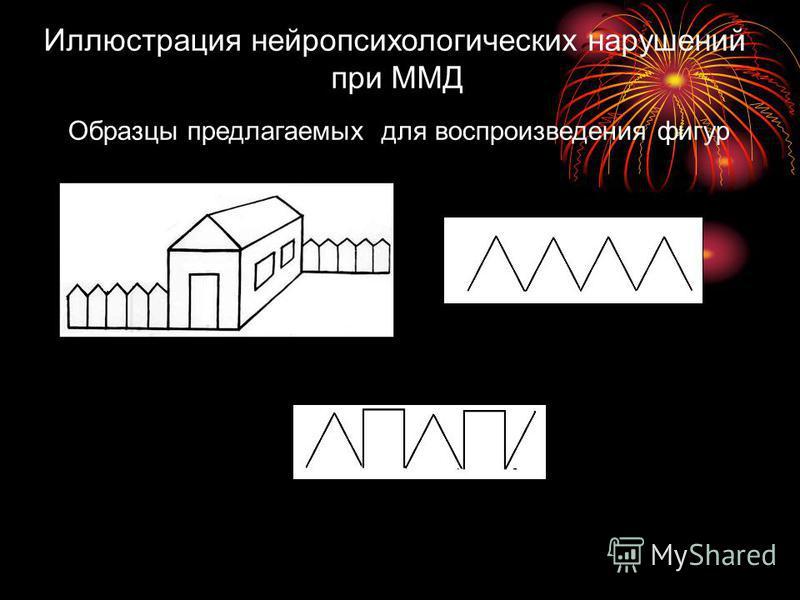 Иллюстрация нейропсихологических нарушений при ММД Образцы предлагаемых для воспроизведения фигур