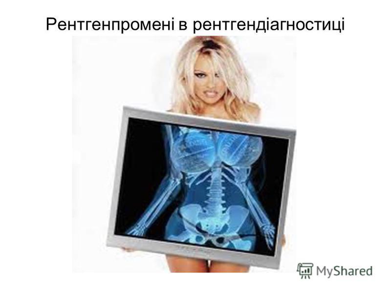Рентгенпромені в рентгендіагностиці