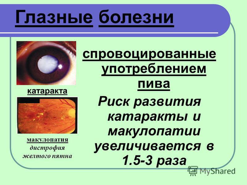 катаракта спровоцированные употреблением пива Риск развития катаракты и макулопатии увеличивается в 1.5-3 раза макулопатия дистрофия желтого пятна Глазные болезни