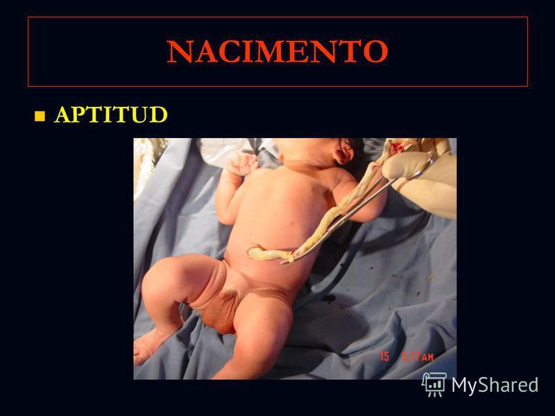 NACIMENTO APTITUD APTITUD
