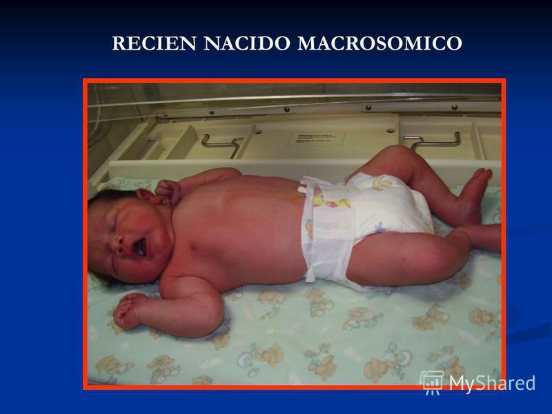 RECIEN NACIDO MACROSOMICO