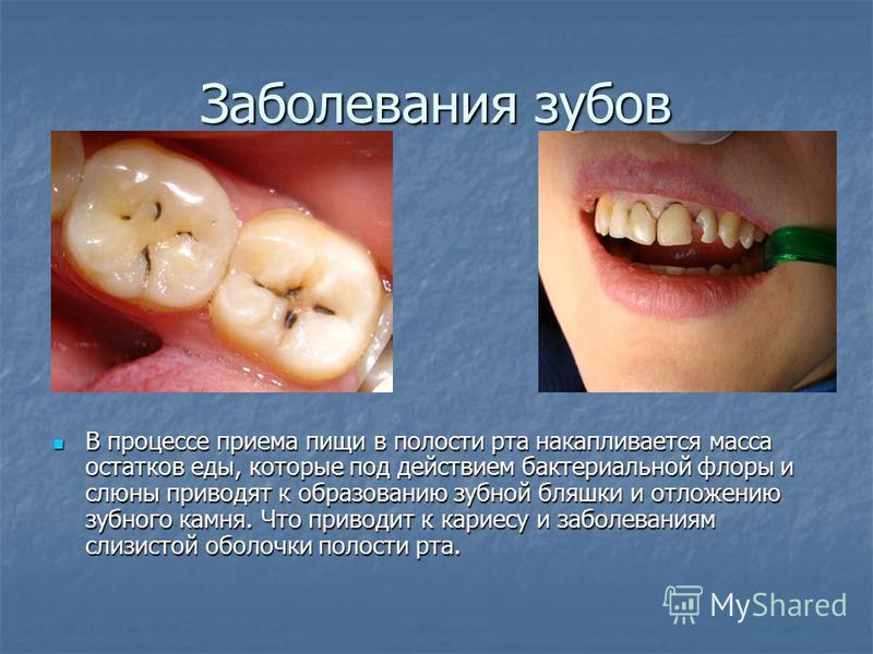 Заболевания зубов В процессе приема пищи в полости рта накапливается масса остатков еды, которые под действием бактериальной флоры и слюны приводят к образованию зубной бляшки и отложению зубного камня. Что приводит к кариесу и заболеваниям слизистой