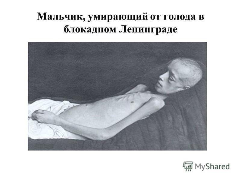 Мальчик, умирающий от голода в блокадном Ленинграде