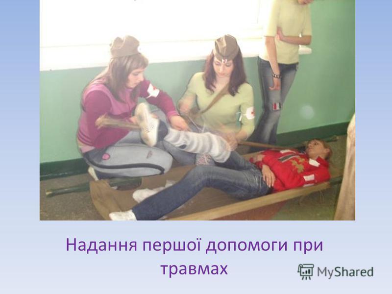 Надання першої допомоги при травмах