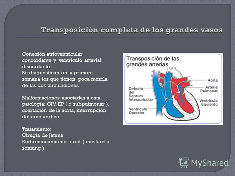 Conexión atrioventricular concordante y ventrículo arterial discordante. Se diagnostican en la primera semana los que tienen poca mezcla de las dos circulaciones. Malformaciones asociadas a esta patología: CIV, EP ( o subpulmonar ), coartación de la
