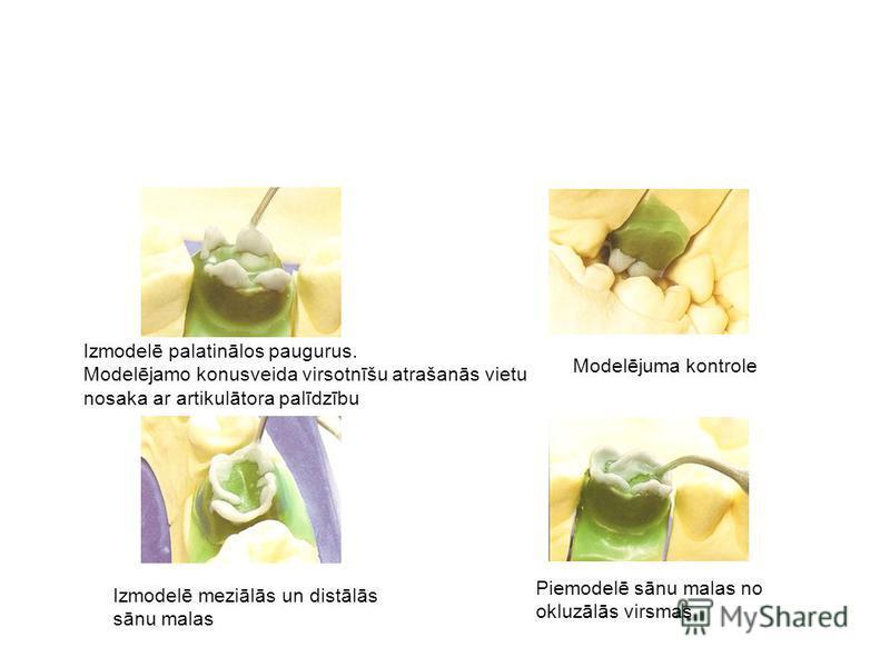 Izmodelē palatinālos paugurus. Modelējamo konusveida virsotnīšu atrašanās vietu nosaka ar artikulātora palīdzību Modelējuma kontrole Izmodelē meziālās un distālās sānu malas Piemodelē sānu malas no okluzālās virsmas