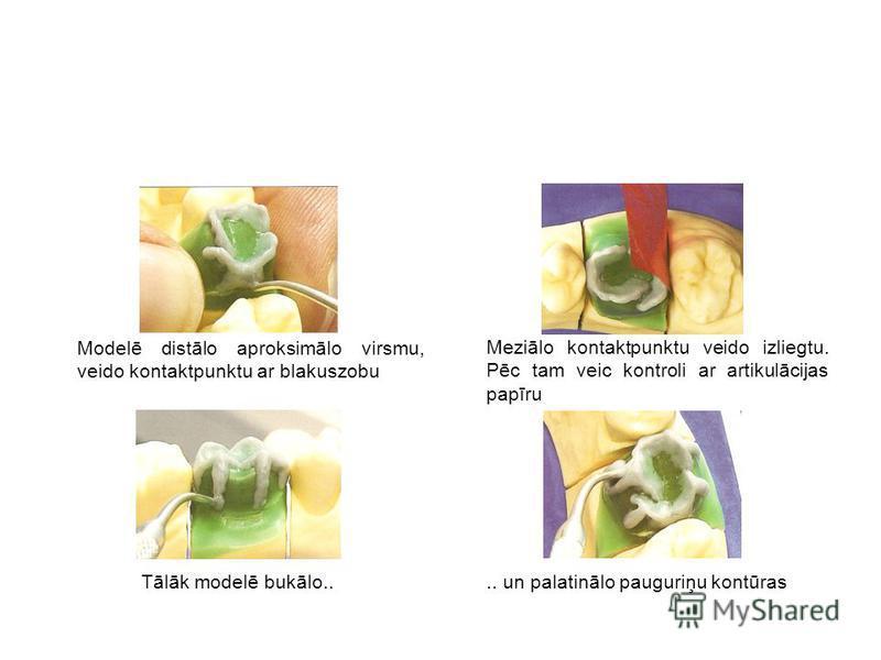 Modelē distālo aproksimālo virsmu, veido kontaktpunktu ar blakuszobu Meziālo kontaktpunktu veido izliegtu. Pēc tam veic kontroli ar artikulācijas papīru Tālāk modelē bukālo.... un palatinālo pauguriņu kontūras