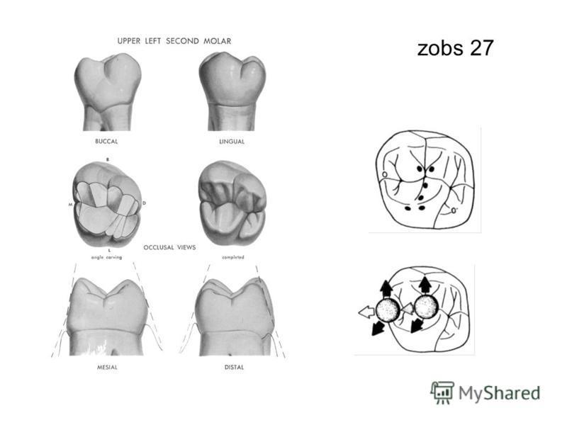 zobs 27