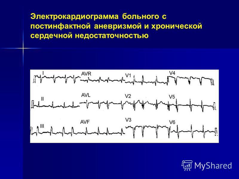 Электрокардиограмма больного с постинфарктной аневризмой и хронической сердечной недостаточностью