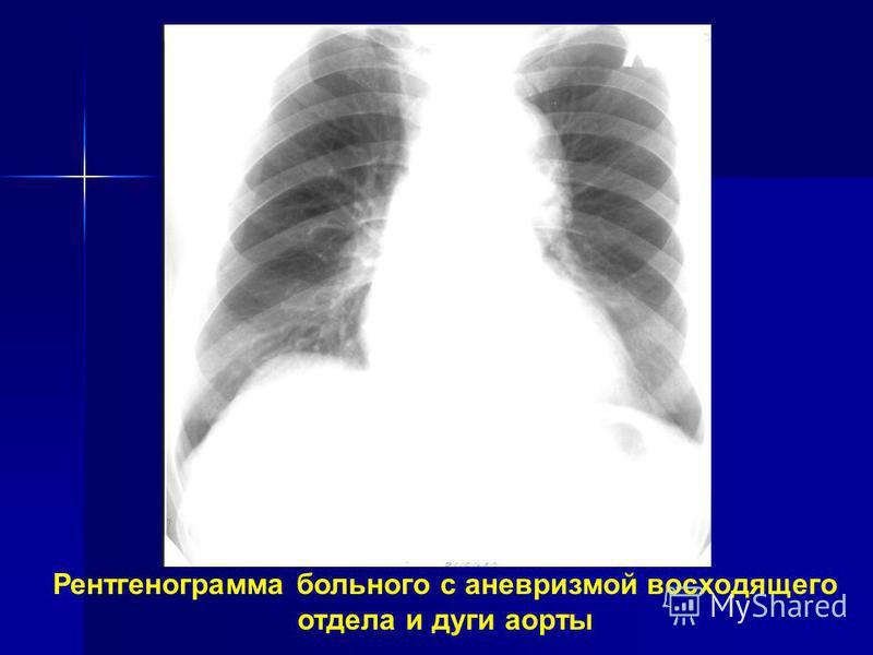 Рентгенограмма больного с аневризмой восходящего отдела и дуги аорты