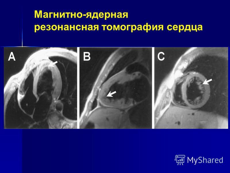 Магнитно-ядерная резонансная томография сердца