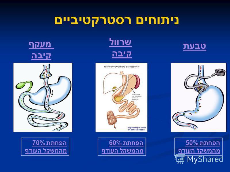 טבעת מעקף קיבה שרוול קיבה הפחתת 60% מהמשקל העודף הפחתת 70% מהמשקל העודף הפחתת 50% מהמשקל העודף ניתוחים רסטרקטיביים