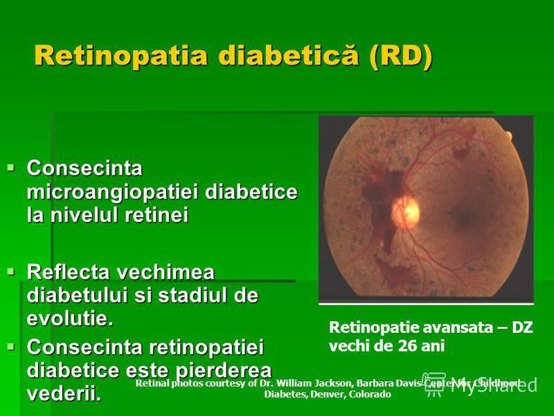 Retinopatia diabetică (RD) Consecinta microangiopatiei diabetice la nivelul retinei Consecinta microangiopatiei diabetice la nivelul retinei Reflecta vechimea diabetului si stadiul de evolutie. Reflecta vechimea diabetului si stadiul de evolutie. Con