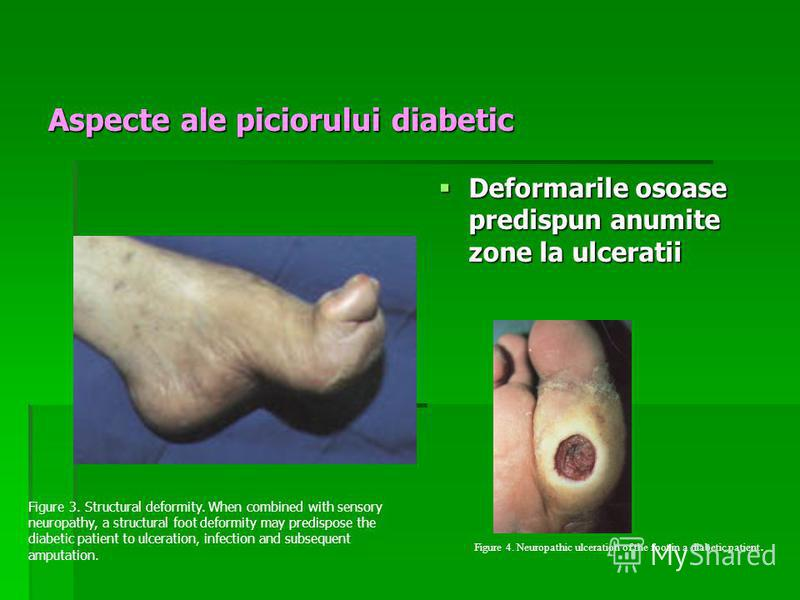 Aspecte ale piciorului diabetic Deformarile osoase predispun anumite zone la ulceratii Deformarile osoase predispun anumite zone la ulceratii Figure 3. Structural deformity. When combined with sensory neuropathy, a structural foot deformity may predi