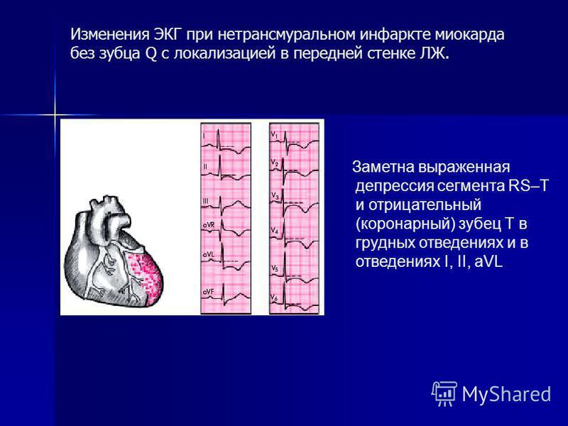 Заметна выраженная депрессия сегмента RS–Т и отрицательный (коронарный) зубец Т в грудных отведениях и в отведениях I, II, aVL Изменения ЭКГ при нетрансмуральном инфаркте миокарда без зубца Q с локализацией в передней стенке ЛЖ.