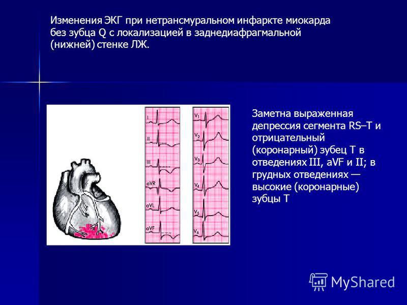 Заметна выраженная депрессия сегмента RS–Т и отрицательный (коронарный) зубец Т в отведениях III, аVF и II; в грудных отведениях высокие (коронарные) зубцы Т Изменения ЭКГ при нетрансмуральном инфаркте миокарда без зубца Q с локализацией в заднедиафр