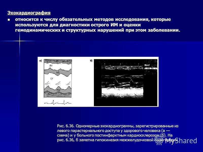 Эхокардиография относится к числу обязательных методов исследования, которые используются для диагностики острого ИМ и оценки гемодинамических и структурных нарушений при этом заболевании. Рис. 6.36. Одномерные эхокардиограммы, зарегистрированные из