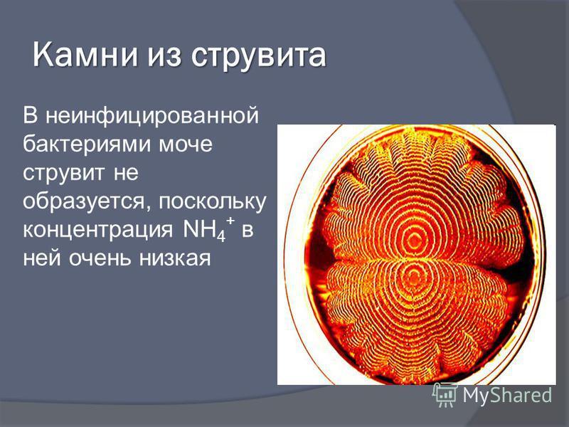Камни из струвита В неинфицированной бактериями моче струвит не образуется, поскольку концентрация NH 4 + в ней очень низкая