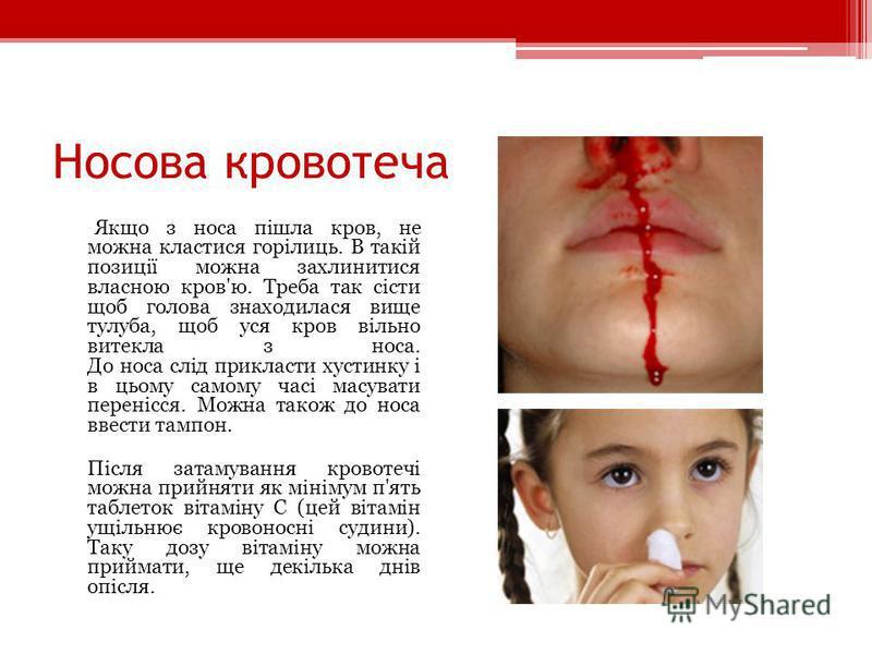 Носова кровотеча Якщо з носа пішла кров, не можна кластися горілиць. В такій позиції можна захлинитися власною кров'ю. Треба так сісти щоб голова знаходилася вище тулуба, щоб уся кров вільно витекла з носа. До носа слід прикласти хустинку і в цьому с