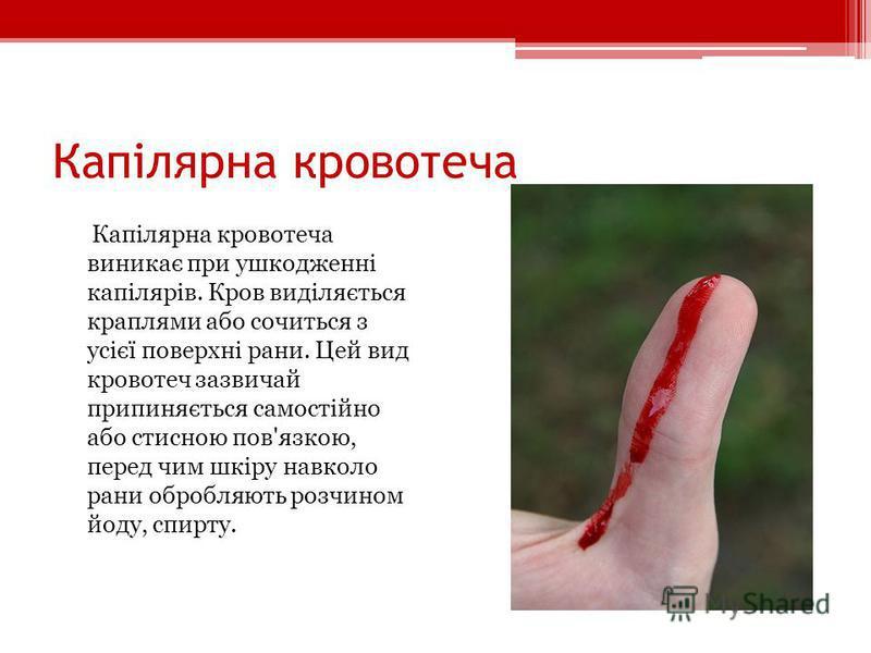 Капілярна кровотеча Капілярна кровотеча виникає при ушкодженні капілярів. Кров виділяється краплями або сочиться з усієї поверхні рани. Цей вид кровотеч зазвичай припиняється самостійно або стисною пов'язкою, перед чим шкіру навколо рани обробляють р