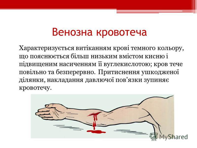 Венозна кровотеча Характеризується витіканням крові темного кольору, що пояснюється більш низьким вмістом кисню і підвищеним насиченням її вуглекислотою; кров тече повільно та безперервно. Притиснення ушкодженої ділянки, накладання давлючої пов'язки