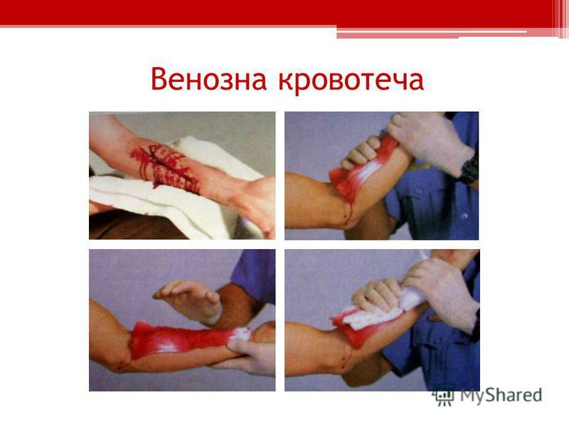 Венозна кровотеча