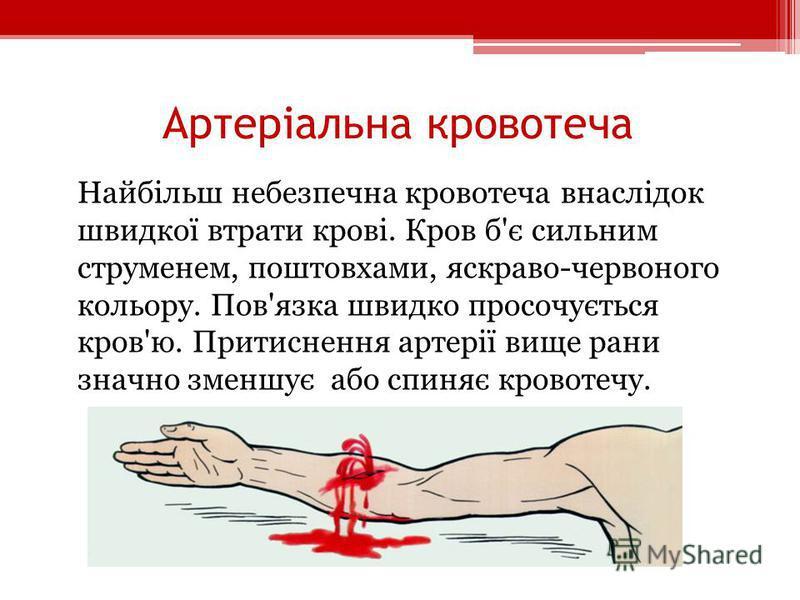 Артеріальна кровотеча Найбільш небезпечна кровотеча внаслідок швидкої втрати крові. Кров б'є сильним струменем, поштовхами, яскраво-червоного кольору. Пов'язка швидко просочується кров'ю. Притиснення артерії вище рани значно зменшує або спиняє кровот