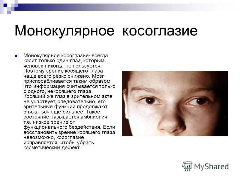 Монокулярное косоглазие Монокулярное косоглазие- всегда косит только один глаз, которым человек никогда не пользуется. Поэтому зрение косящего глаза чаще всего резко снижено. Мозг приспосабливается таким образом, что информация считывается только с о