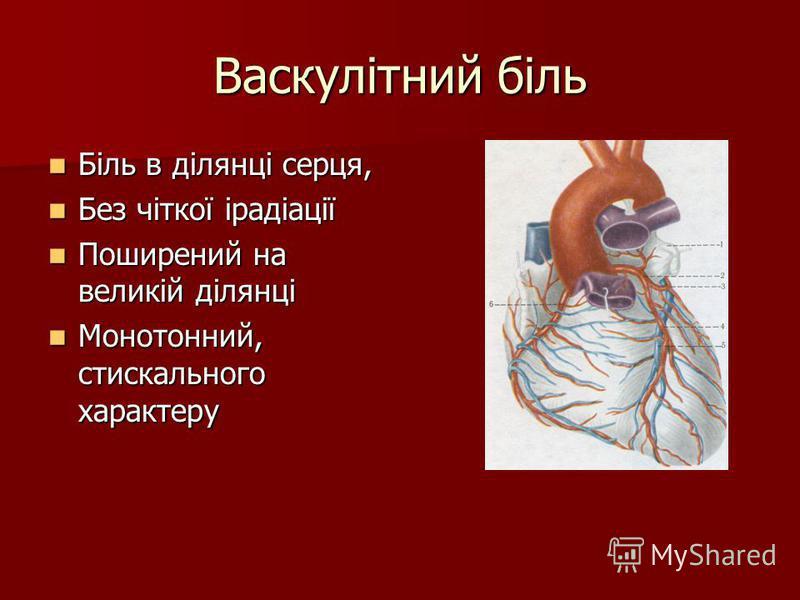 Васкулітний біль Біль в ділянці серця, Біль в ділянці серця, Без чіткої ірадіації Без чіткої ірадіації Поширений на великій ділянці Поширений на великій ділянці Монотонний, стискального характеру Монотонний, стискального характеру
