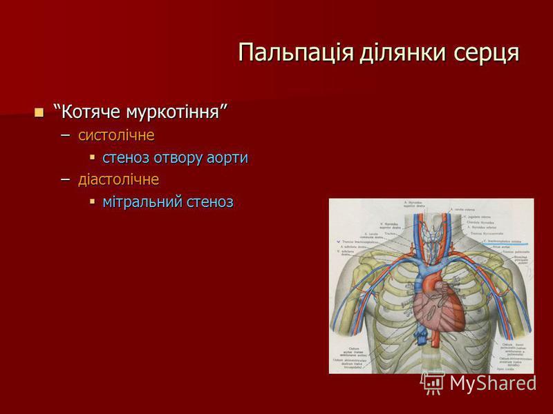 Пальпація ділянки серця Котяче муркотіння Котяче муркотіння –систолічне стеноз отвору аорти стеноз отвору аорти –діастолічне мітральний стеноз мітральний стеноз