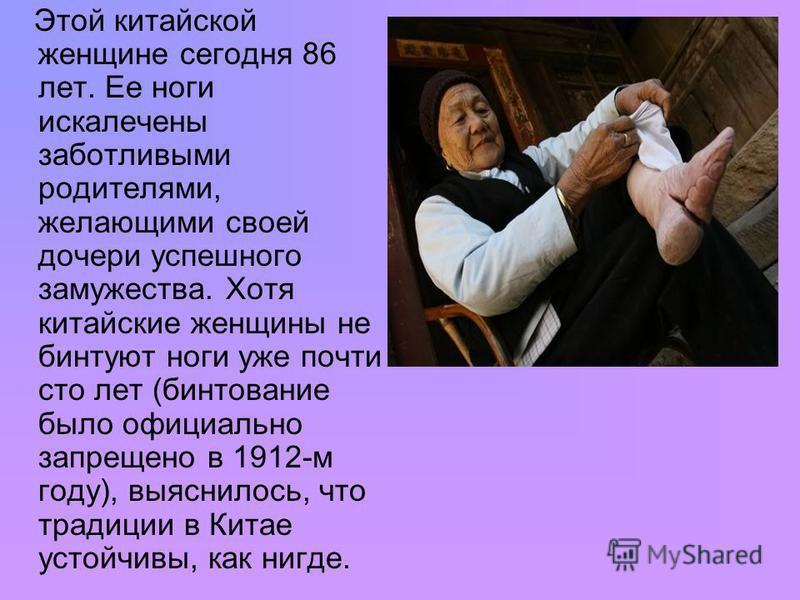 Этой китайской женщине сегодня 86 лет. Ее ноги искалечены заботливыми родителями, желающими своей дочери успешного замужества. Хотя китайские женщины не бинтуют ноги уже почти сто лет (бинтование было официально запрещено в 1912-м году), выяснилось,