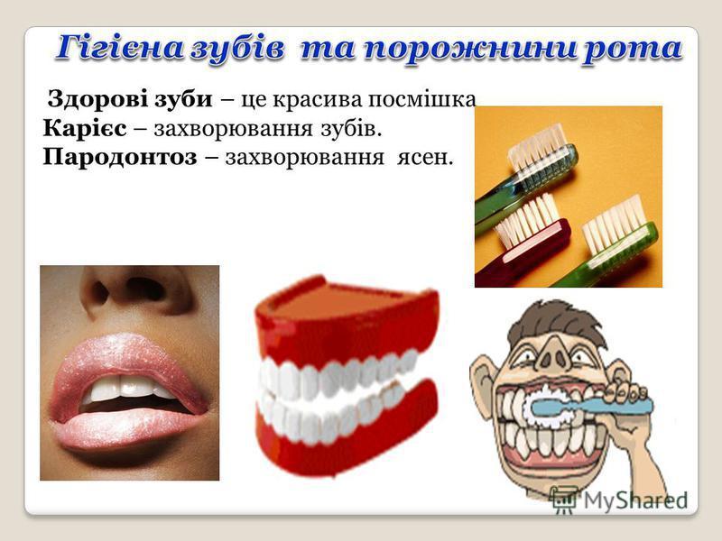Здорові зуби – це красива посмішка Карієс – захворювання зубів. Пародонтоз – захворювання ясен.