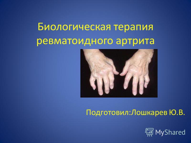 Биологическая терапия ревматоидного артрита Подготовил:Лошкарев Ю.В.
