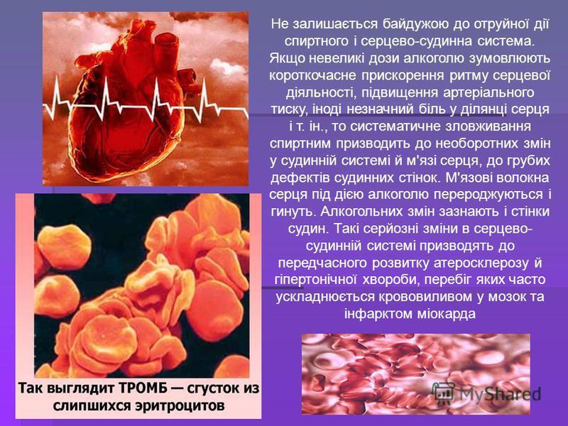 Не залишається байдужою до отруйної дії спиртного і серцево-судинна система. Якщо невеликі дози алкоголю зумовлюють короткочасне прискорення ритму серцевої діяльності, підвищення артеріального тиску, іноді незначний біль у ділянці серця і т. ін., то