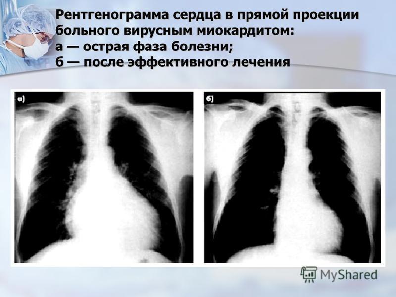 Рентгенограмма сердца в прямой проекции больного вирусным миокардитом: а острая фаза болезни; б после эффективного лечения