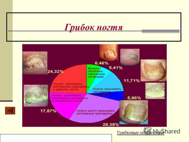Образовательный центр «Нива» Мельникова Ольга Грибок ногтя Грибковые заболевание