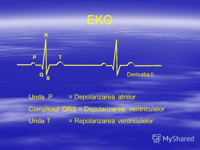 Unda P= Depolarizarea atriilor Complexul QRS = Depolarizarea ventriculelor Unda T = Repolarizarea ventriculelor Derivatia II EKG