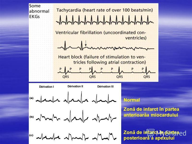 Normal Zonă de infarct în partea anterioarăa miocardului Zonă de infarct în partea posterioară a apexului