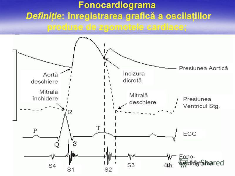 Fonocardiograma Definiţie: înregistrarea grafică a oscilaţiilor produse de zgomotele cardiace;