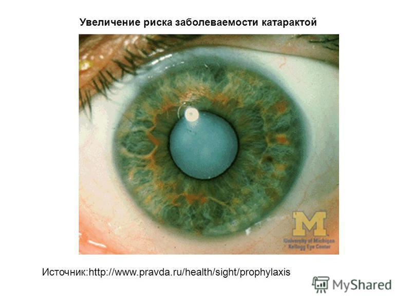 Источник:http://www.pravda.ru/health/sight/prophylaxis Увеличение риска заболеваемости катарактой