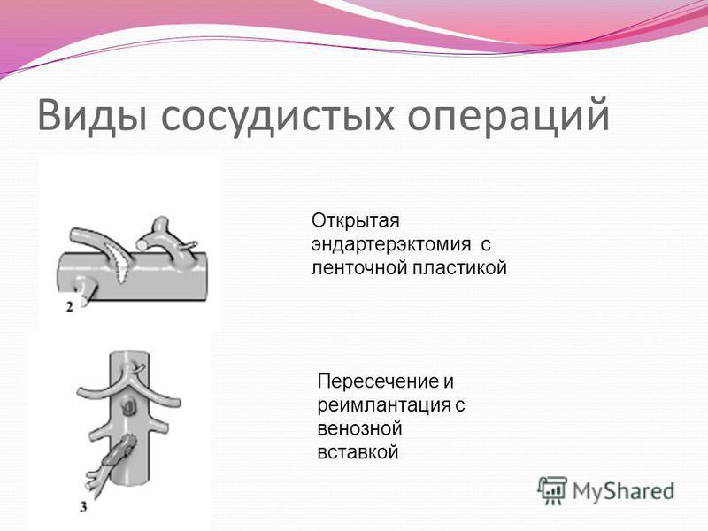 Виды сосудистых операций Открытая эндартерэктомия с ленточной пластикой Пересечение и реимплантация с венозной вставкой